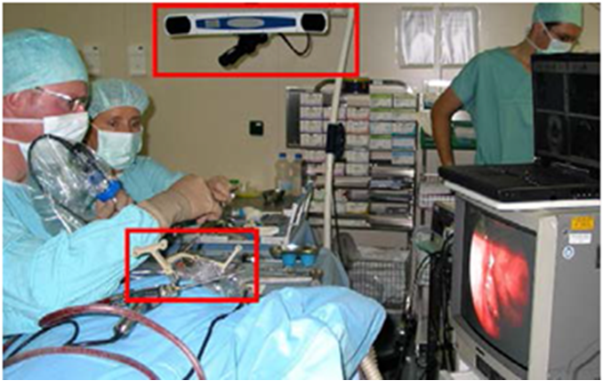 Endoscope tracking using OT