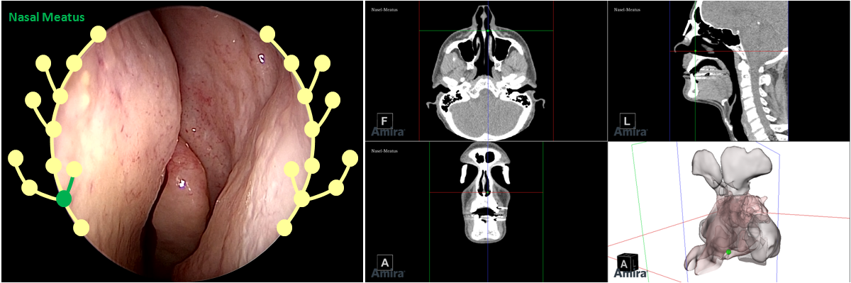 Current position and navigation graphical hints are overlaid on the endoscopic video and visualized within an anatomical reference model and CT.