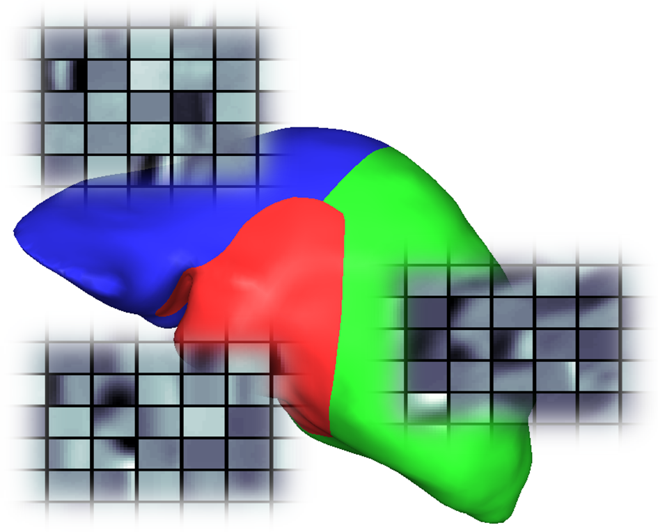 Machine Learning Approaches for Enhanced, Shape Model Based 3D Image