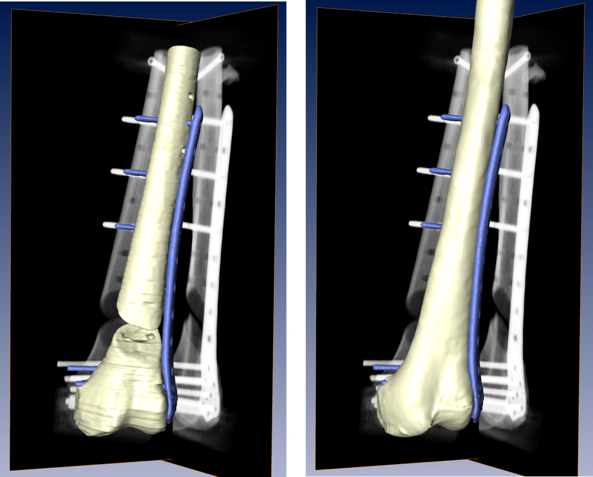 Ground truth shape of the femur and implant from CT (left) and the 3D­-reconstructed femoral  shape and implant pose based on reference DRRs (right).