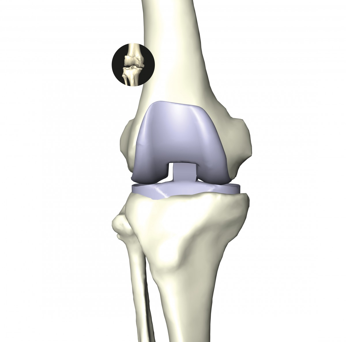 Individual anatomy reconstruction of the knee bones allows 3D planning of implant positioning. Mechanical simulations taking cartilage, patella, tendons, and ligaments into account improve the understanding of degenerative diseases and the functionally appropriate positioning of implants.