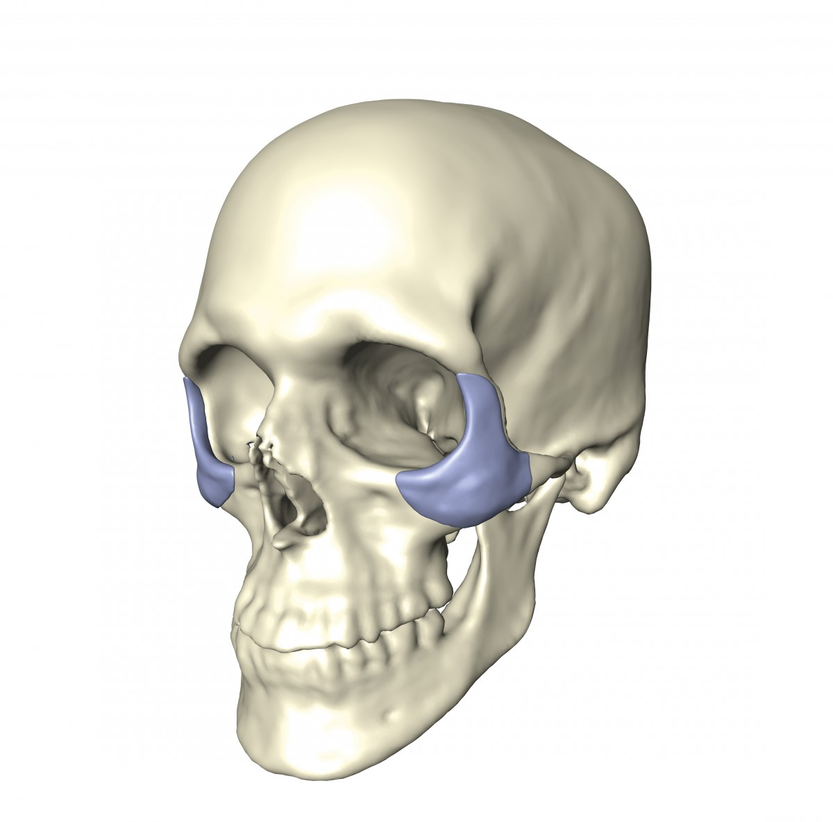 Augmentation implants replace traumatized bone or fill voids left by malformed bones. An important aspect is to restore a socially accepted facial shape, for which the appropriate implant shape has to be determined.