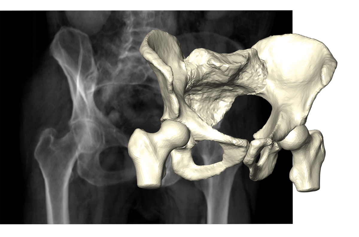 Reconstruction of pelvic bone and hip joints on the basis of few X-ray projections.