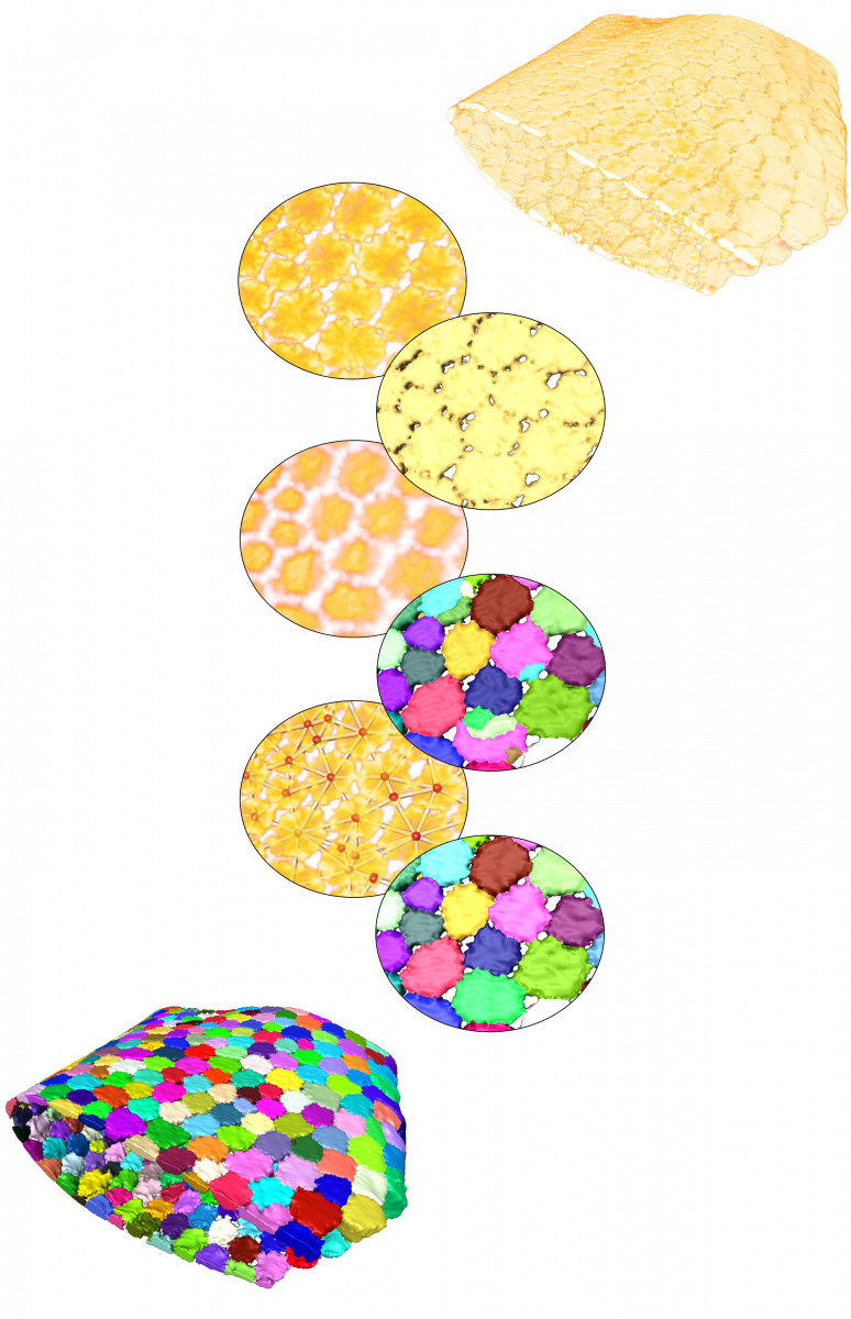 Workflow for tesserae segmentation