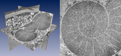 Fig. 2) Multiplanar reconstruction (MPR) of a tomographic dataset of 9 GB, acquired with a v|tome|x s (180kV tube current). MPR and visualisation with ZIBAmira on a Quad Core PC with 24 GB RAM, running Windows 7 Ultimate. Left) Complete data set loaded into memory. Right) detail that clearly depicts image noise due to bad signal to noise ratio.
