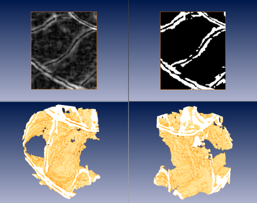 Fig. 5) Top, from left to right: result of a sobel edge detector on the denoised dataset; segmentation of septa and shell material by thresholding on the result of the edge detector. Bottom: two views of volume rendering of the previous segmentation, where portions of the septa and the siphuncle can be clearly identified.