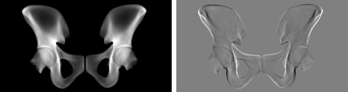 Virtual X-ray projection of mean hip (left) and its derivative w.r.t. a shape parameter (right).